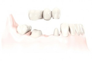 Dental Bridges from Legacy Dental in Idaho Falls