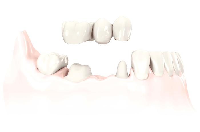 3-unit-bridge_on-teeth_tcm318-41492