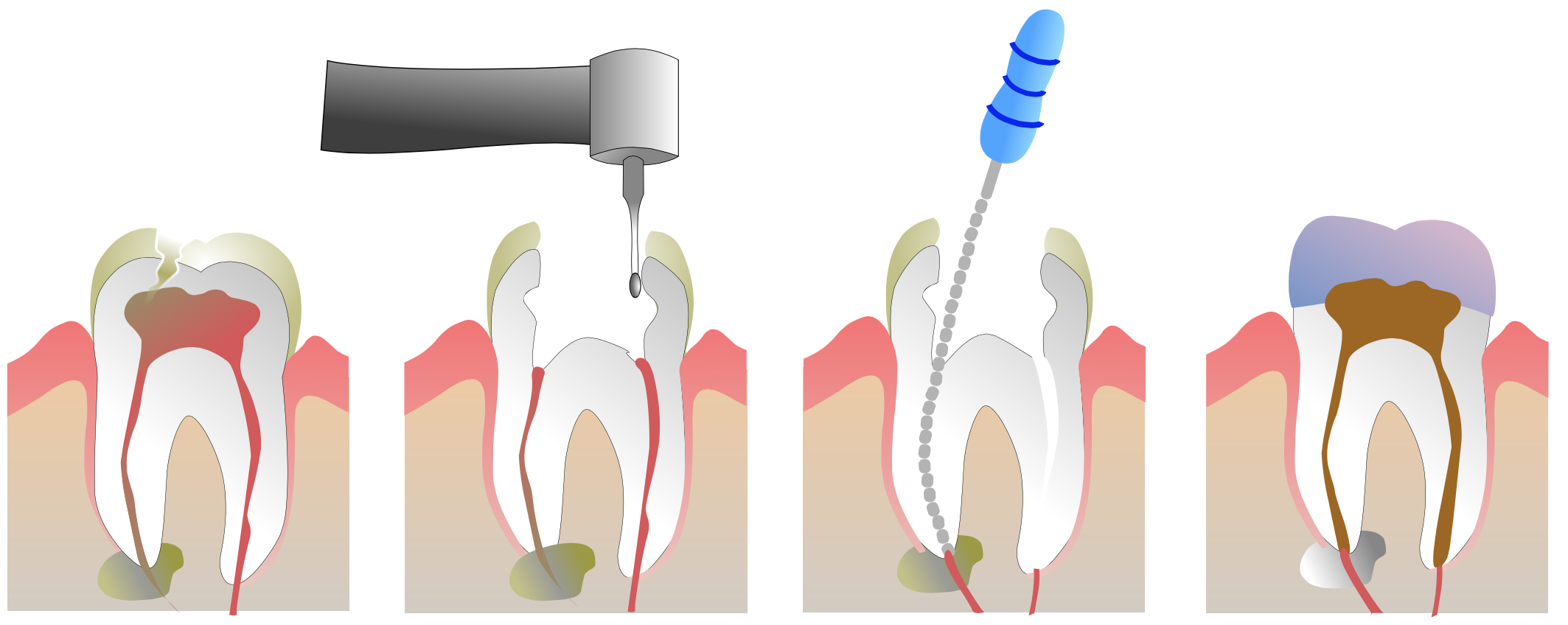 Root Canals | Legacy Dental
